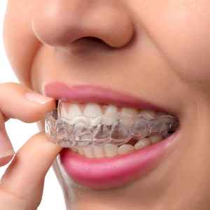 Invisalign – Invisible Braces